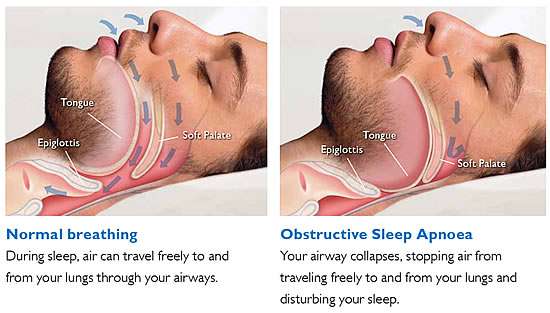 Airflow obstruction in obstructive sleep apnoea